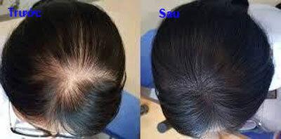 bộ 3 tóc  haco review