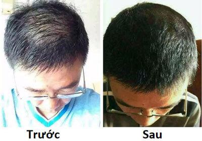 đánh giá bộ 3 tóc  haco